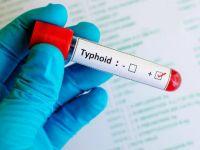 Tifo Aşısının Onay Almış Olduğu Açıklandı
